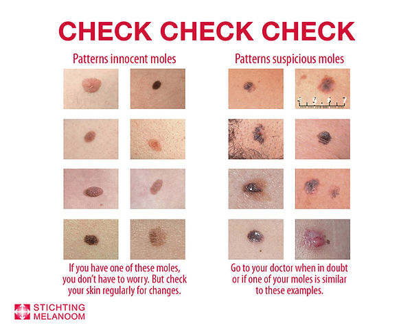 Huidcheck Check your body ENG.jpg