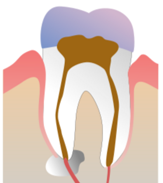 1024px-Root_Canal_Illustration_Molar_edited.png