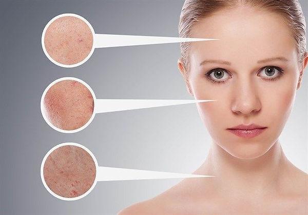 Hautanalyse Wiesloch