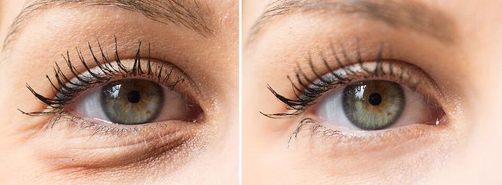 Tränensäcke Augenringe