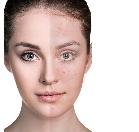 Unreine Haut, Akne, Kosmetik Wiesloch