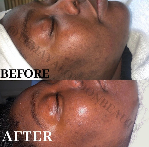 Results of our client on our Treatment Plan after 2 sessions