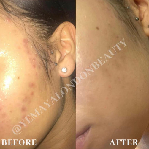 Results of our client on our Treatment Plan