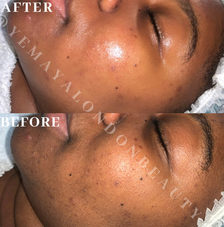 Results after a Bespoke facial