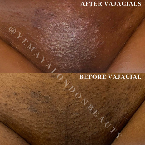 Results of our client after course of Advanced Vajacials