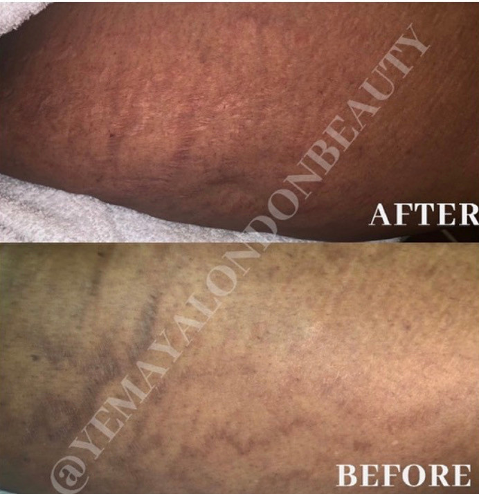 After three stretch mark microneedling sessions