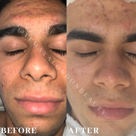 Results of our client on our Treatment Plan after two sessions