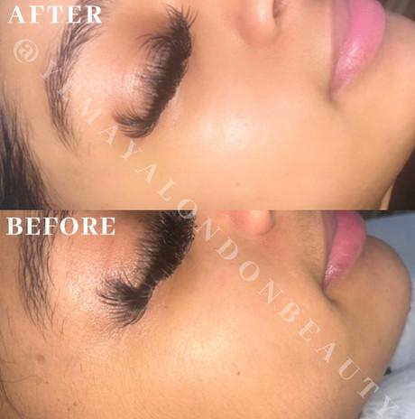 Result after Dermaplaning facial