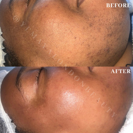 Our client after her Bespoke facial