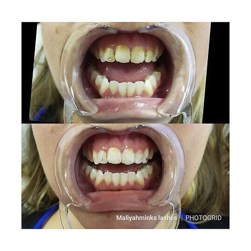 Advanced Whitening Teeth Cleaning