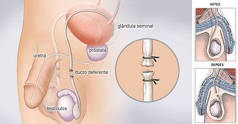 vasectomia.jpg