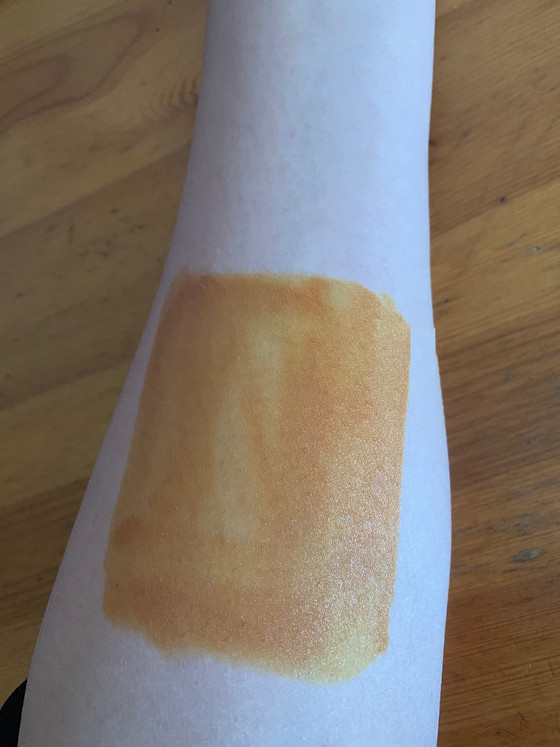 HOW TO PERFORM AN IODINE SKIN PATCH TEST