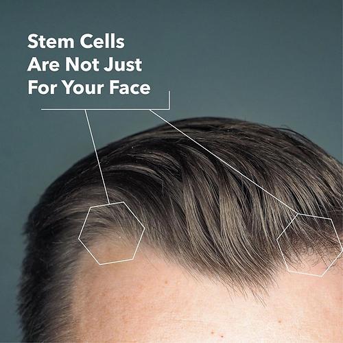 AnteAGE Stem Cells