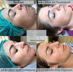 🌿Incredible Results after 3 Skin Needli