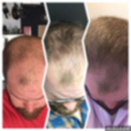 Man hair loss and regrowth Monat