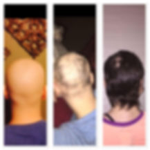 Chemo therapy hair regrowth Monat