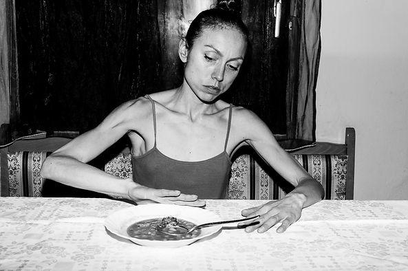 Anorexie, Bulemie, Magersucht behandelt Alexander Seiler in Hannover