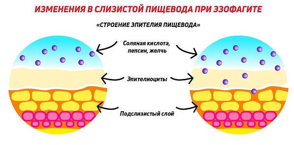 эпителий пищевода.jpg