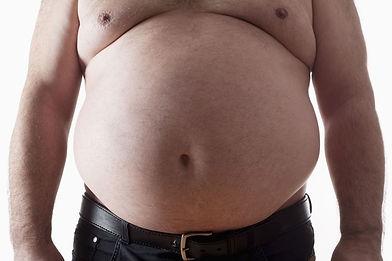 NFH- obese man.jpeg