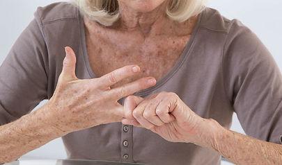 FCW Arthritis hands.jpg