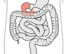 Glyscend study reveals metabolic benefits of its oral polymer-based duodenal exclusion therapy