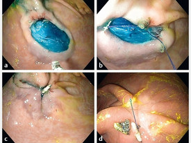 X-Tack is superior for acute closure of large resection defects vs TTS clips