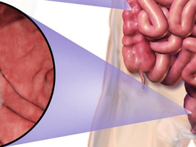 Bariatric surgery associated with increased CRC risk