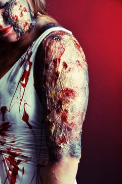 Burn injury FX