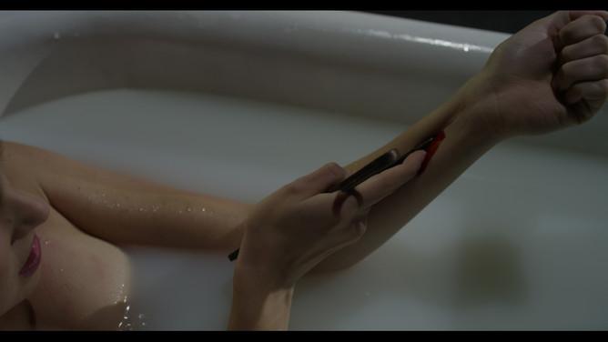 Slit wrist FX