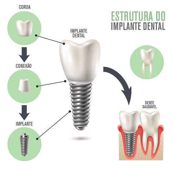 estrutura implante-01.jpg