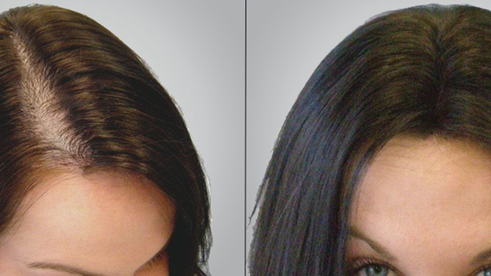 female before after
