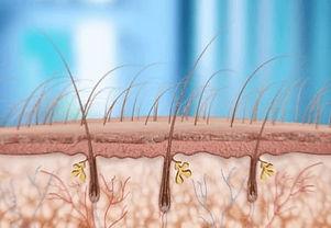 micro scalp clinic