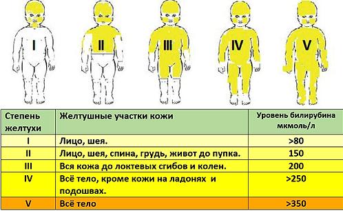 Степень желтухи новорожденных