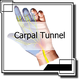 Synergy Chiropractic Winfield provides treatment for carpal tunnel.