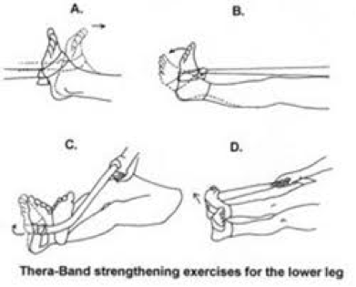 rubber band ankle curl therapy