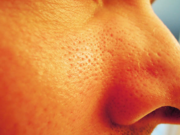 Closeup of clogged pores on a woman's cheek