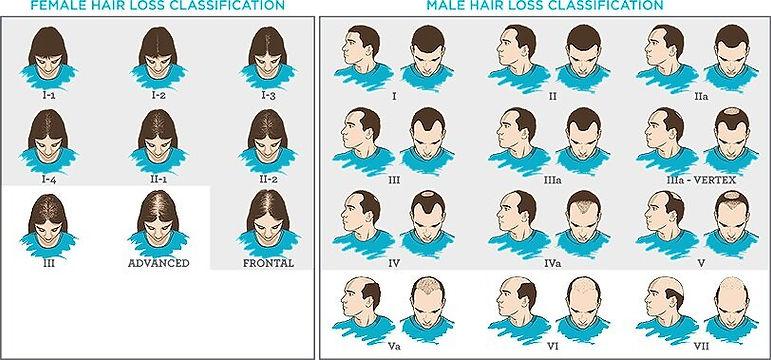 Hair_Loss_Scale_Classification.jpg