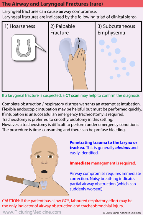 Laryngeal Fractures in Trauma Patients