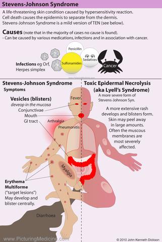 Stevens-Johnson Syndrome