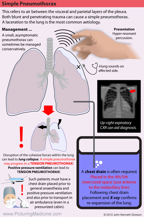 Simple Pneumothorax