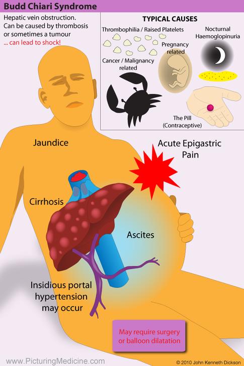 Budd Chiari Syndrome