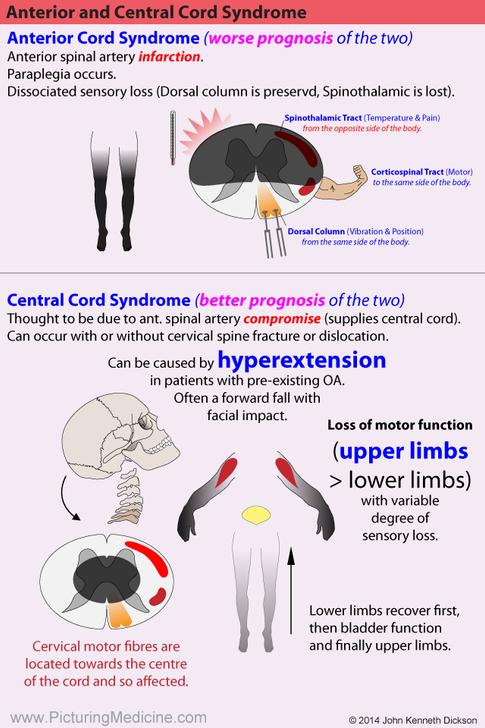 Anterior Cord Syndrome vs Central Cord Syndrome