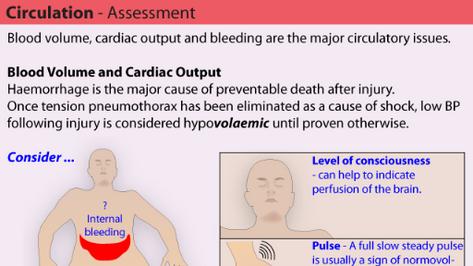 Circulation Assessment in Trauma