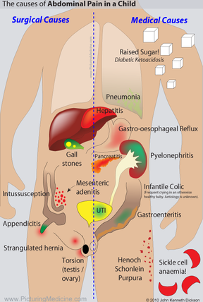Causes of Abdominal Pain in Child