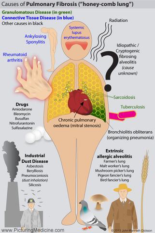 Causes of Pulmonary Fibrosis