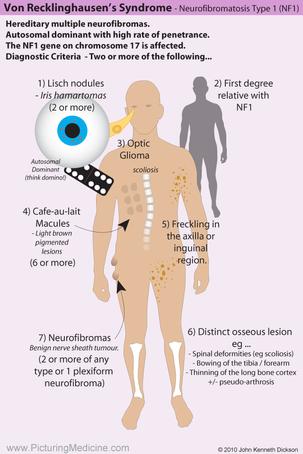Neurofibromatosis Type 1 (Von Recklinghausen Syndrome)