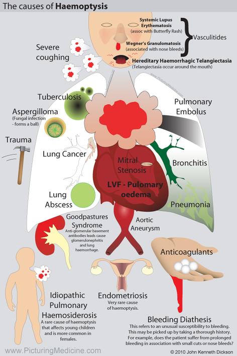 Causes of Haemoptysis