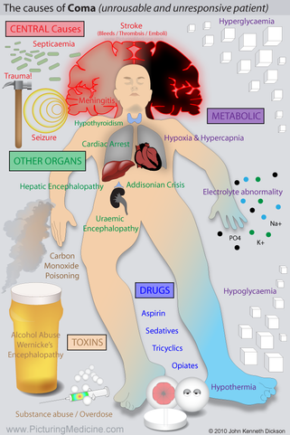 Causes of Coma or Reduced GCS