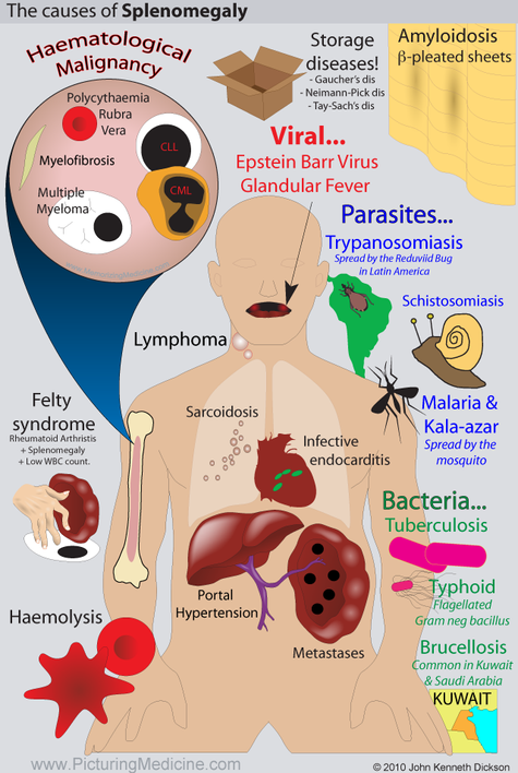 Causes of Splenomegaly