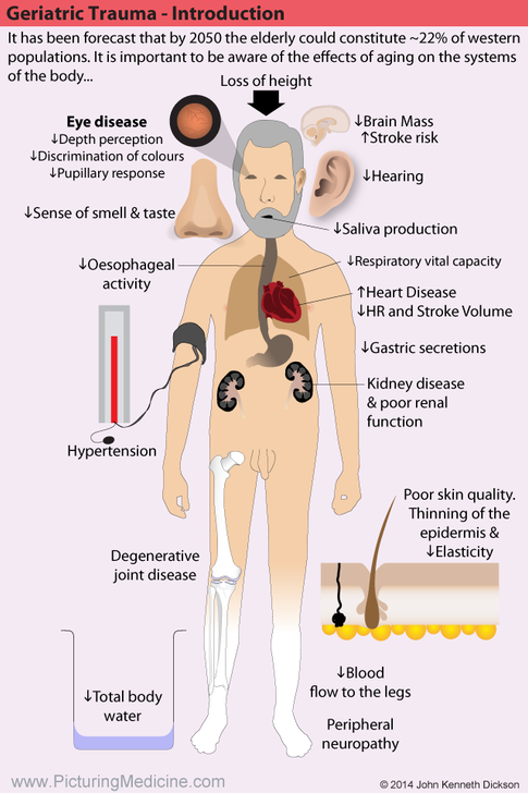 Geriatric or Elderly Trauma Patients